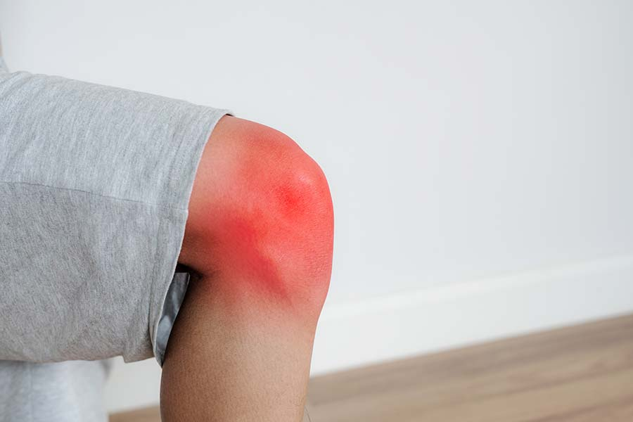 red swollen knee being treated at Singaproe physio